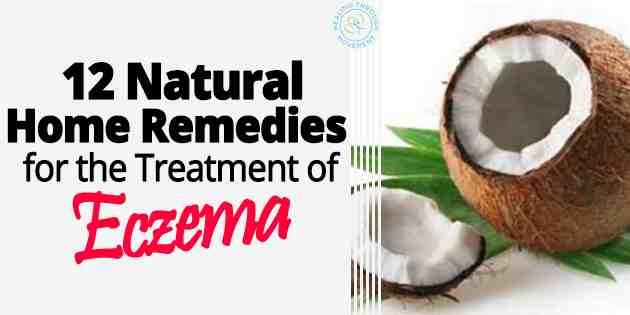 11 natural home remedies for the treatment of eczema healing